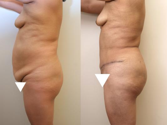 Brazilian Butt Lift Before & After Photos Left Side