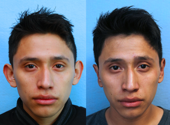 Ear Pinning for Men Orange County Before & After Photos