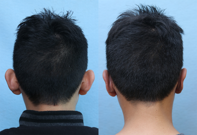 Ear Pinning for Men Before & After Photos Back Side