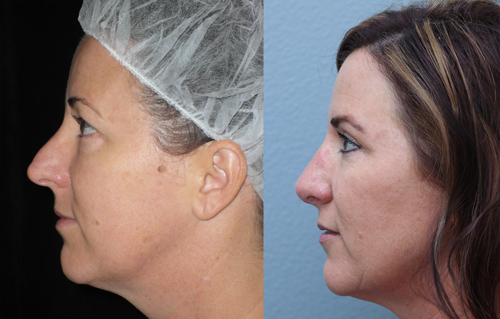 Rhinoplasty Before & After Photos Left Side