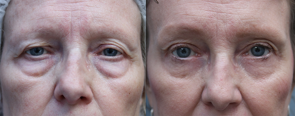 Brow Lift Before & After Photos