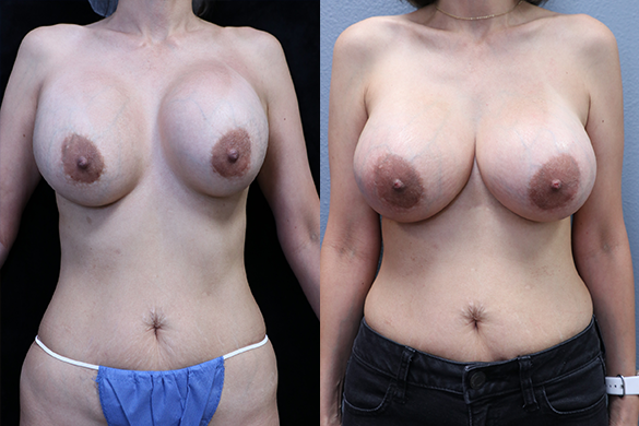 Breast Revision Before & After Photos front side