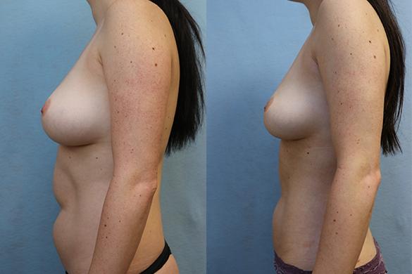Abdomen and Flanks Liposuction left