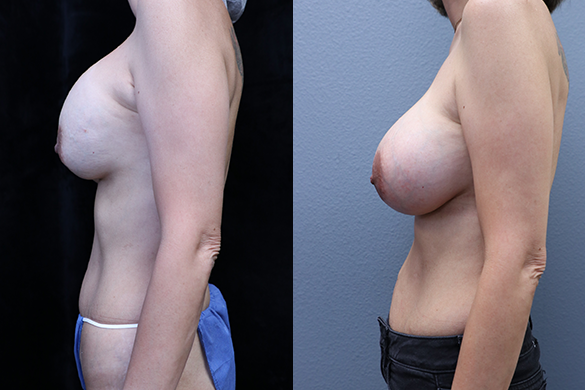 Breast Revision Before & After Photos Left Side