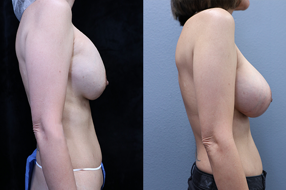 Breast Revision Before & After Photos Right Side