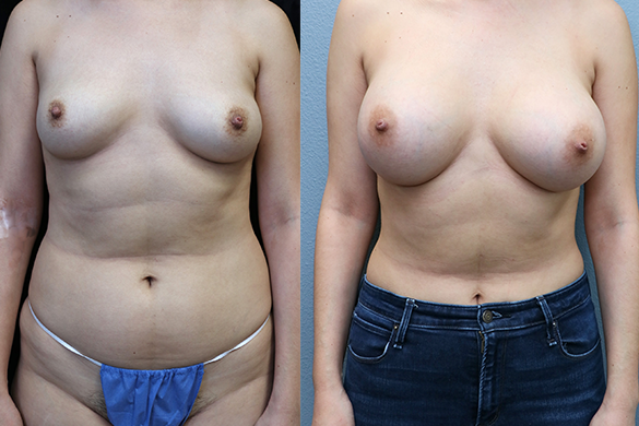 breast augmentation before and after photos - front