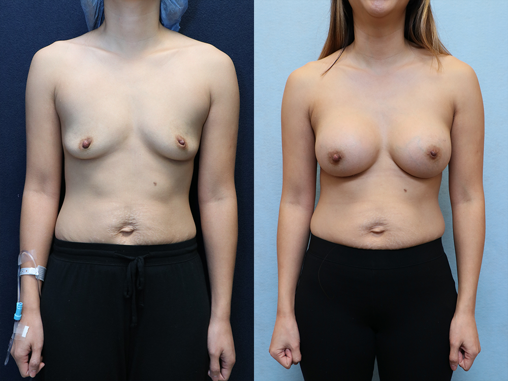 Breast Augmentation with Asymmetry before and after photos front