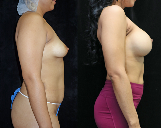 breast augmentation before and after photos - right