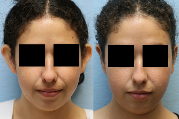 ear surgery orange county CA before and after photos
