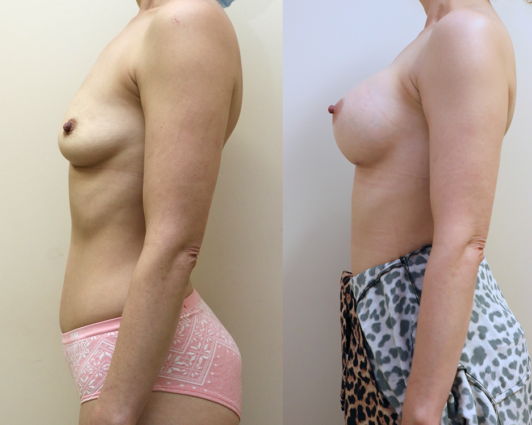 breast augmentation before and after photos - left