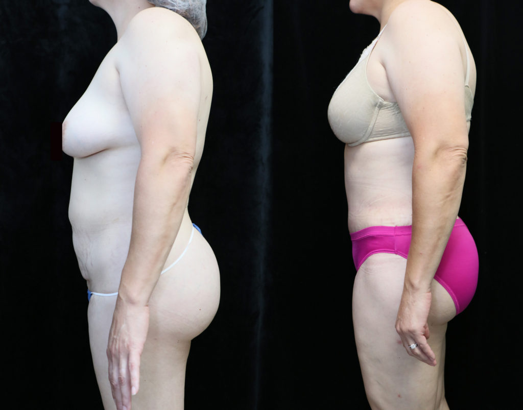 tummy tuck in orange county CA before and after photos
