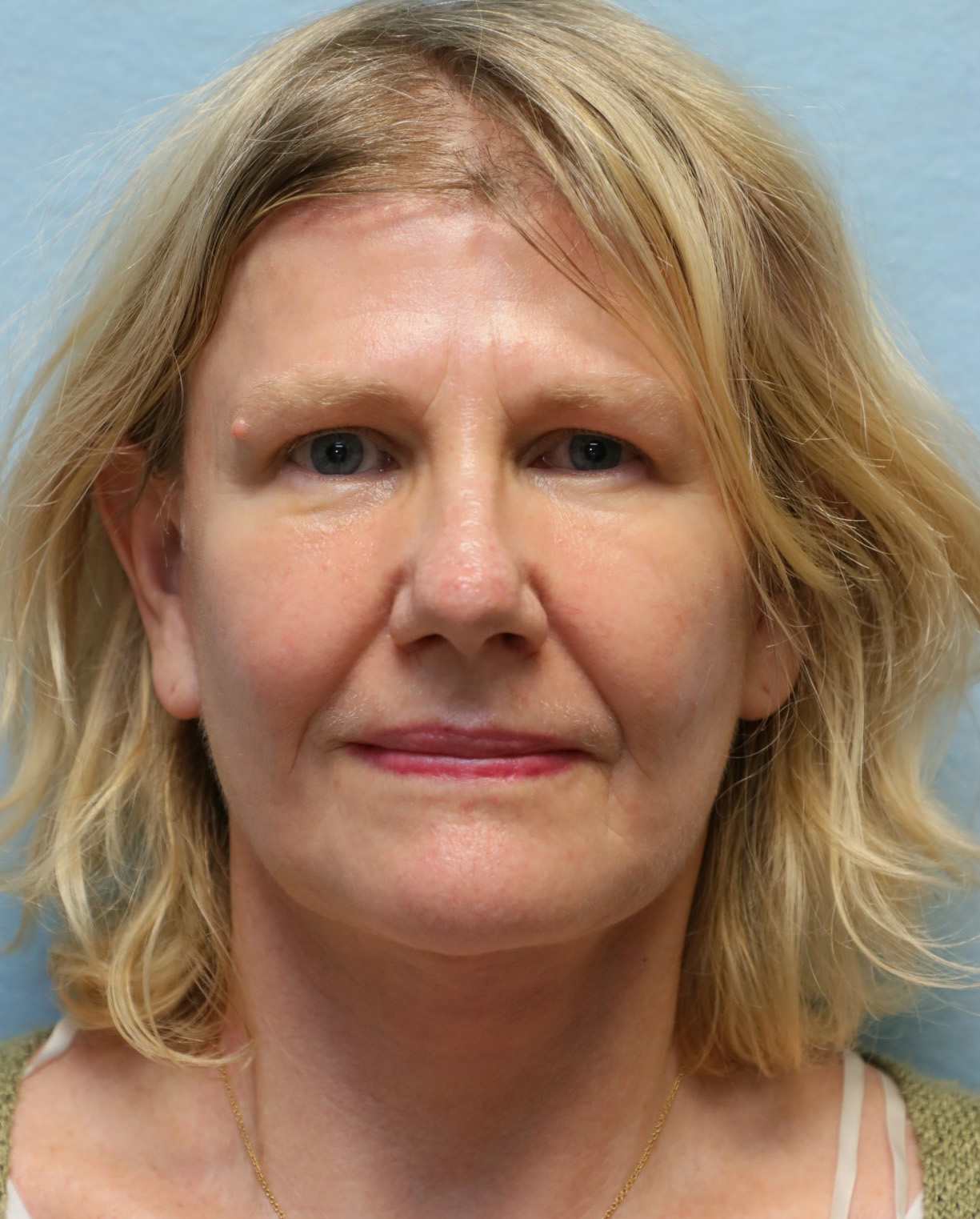 face lift neck lift after photo