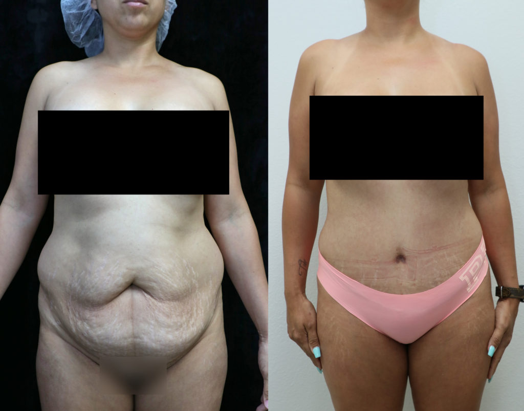 tummy tuck orange county before and after photos front