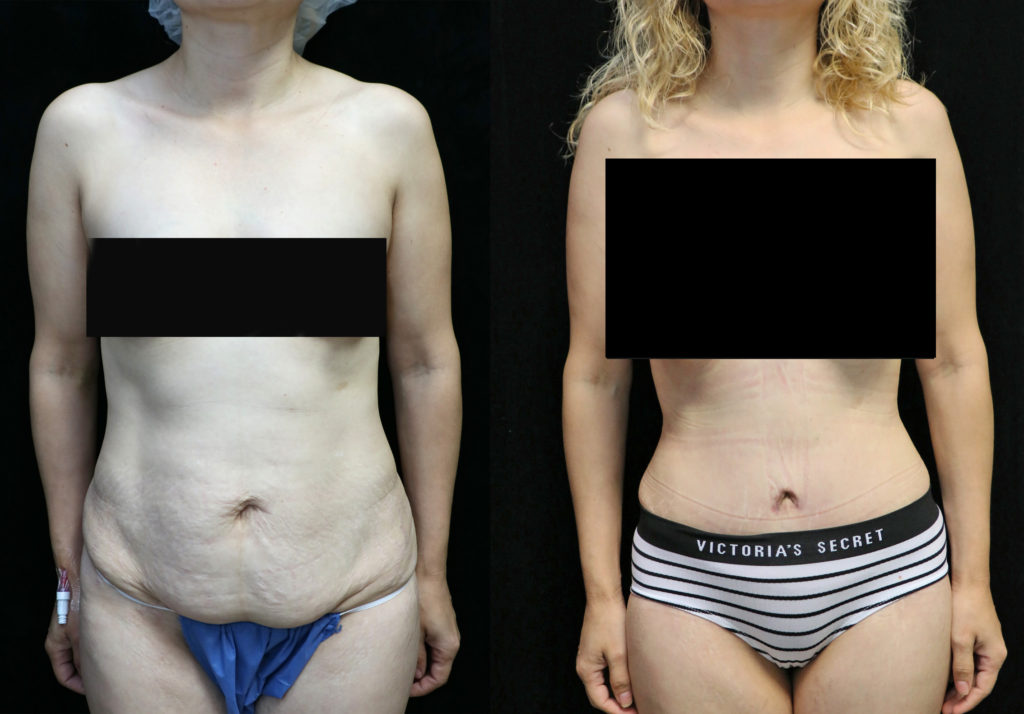 tummy tuck orange county before and after