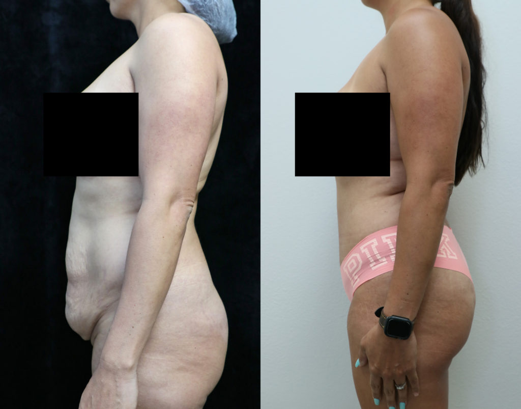 tummy tuck orange county before and after photos left