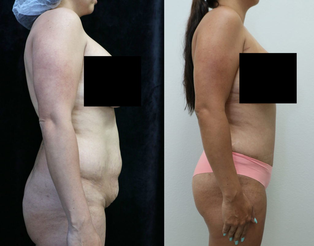 tummy tuck orange county before and after photos right