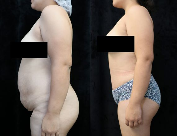 abdominoplasty left before and after