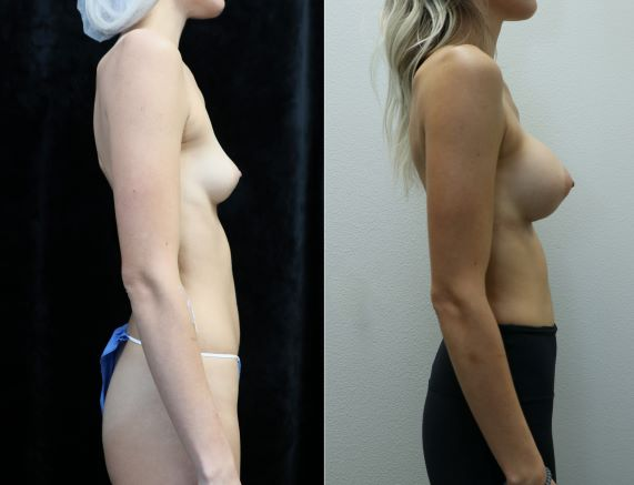 breast augmentation asymmetry before and after