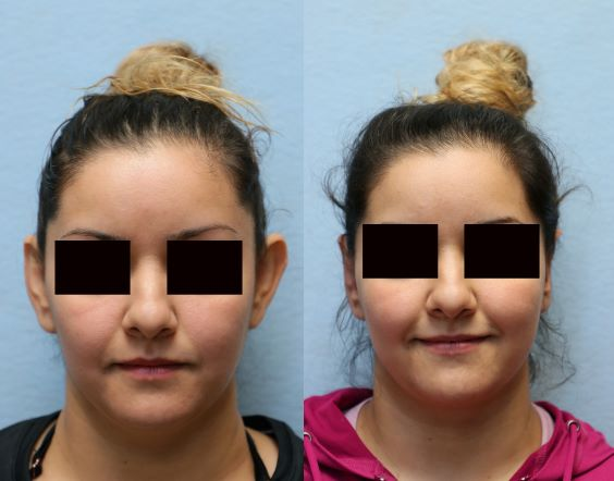OTOPLASTY ORANGE COUNTY before and after