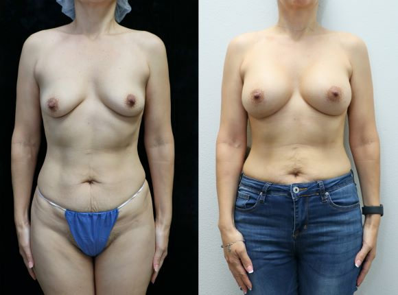brast augmentatin front before and after results