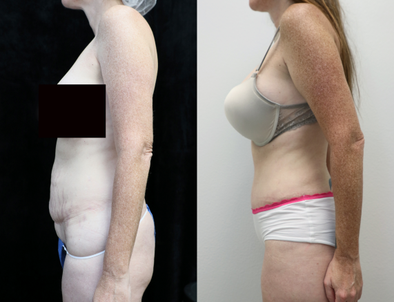 before and after photos of abdominoplasty left