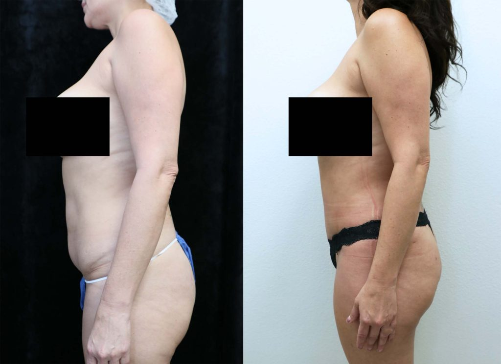 abdominoplasty before and after photos left