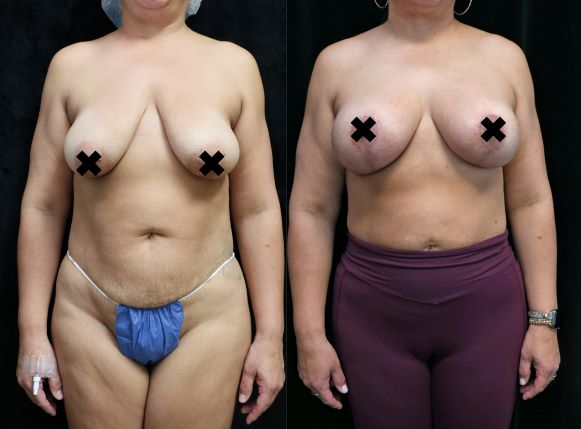 breast lift and augmentation front before and after photo