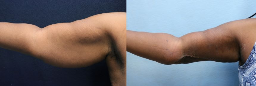arm lift- arm liposuction- before and after