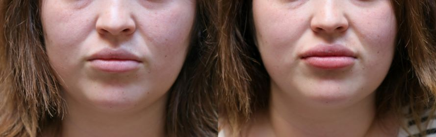 lip augmentation before and after