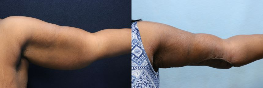 arm lift- arm liposuction before and after