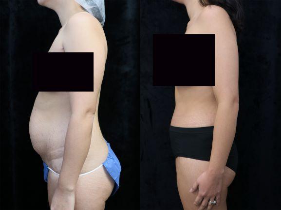 left side photos tummy tuck