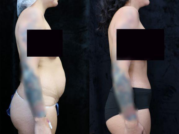 right side photos tummy tuck