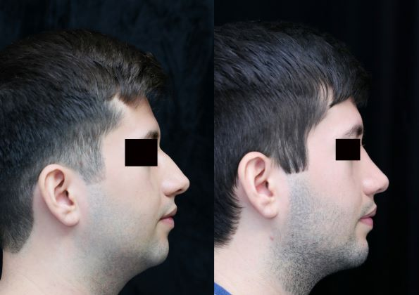 chin augmentation, rhinoplasty, neck liposuction right