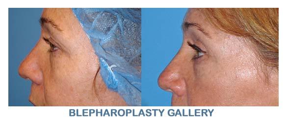 blepharoplasty orange county