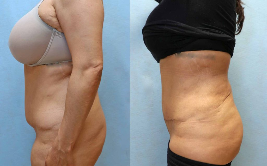 mini tummy tuck before and after left