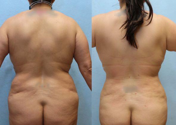 flanks liposuction orange county