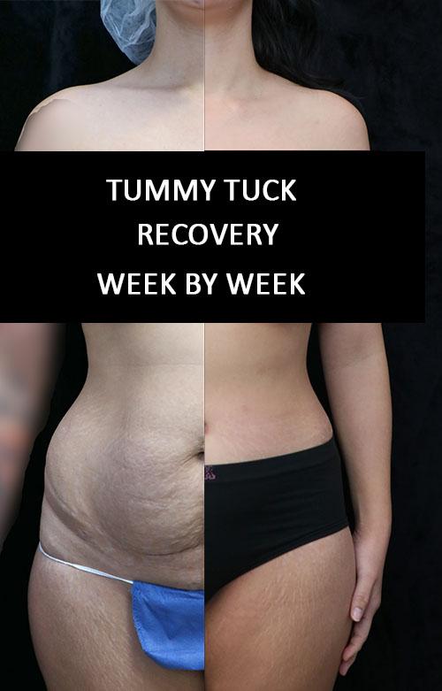 tummy tuck week by week