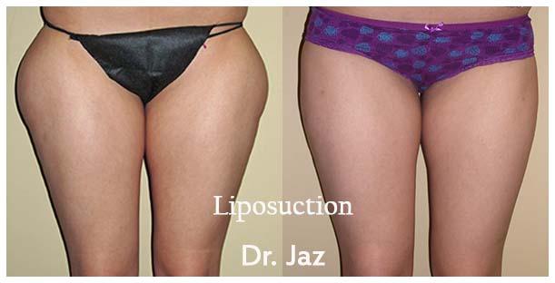 Liposuction orange county