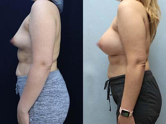 breast augmentation photos