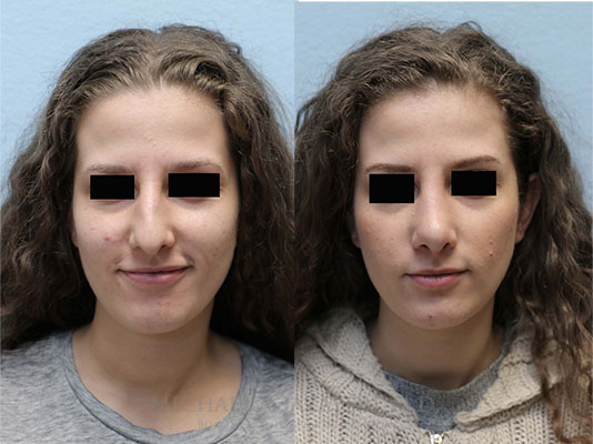 rhinoplasty before and after face